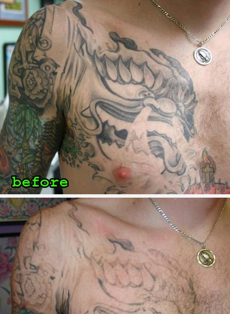 Remove Tattoos What Is The Best Method Blog Tattoo Ideas And Designs