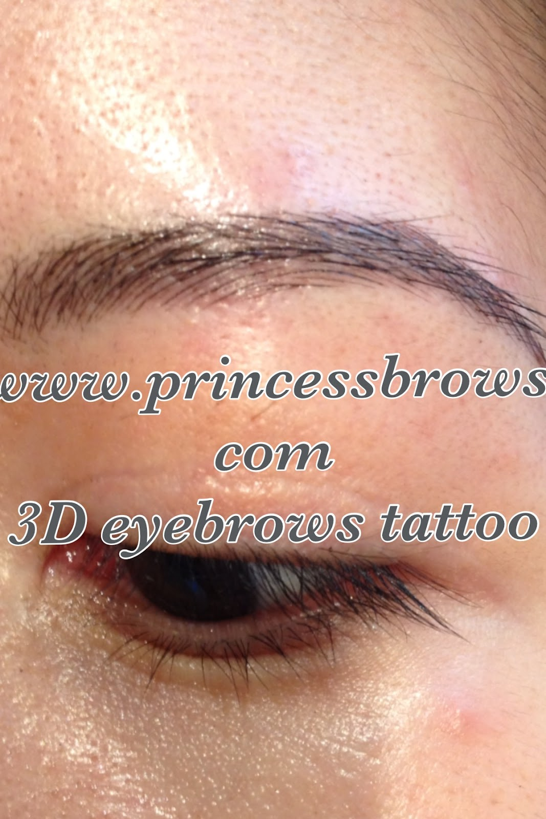 Princessbrows Prevention Of Chemotherapy Induced Hair Ideas And Designs