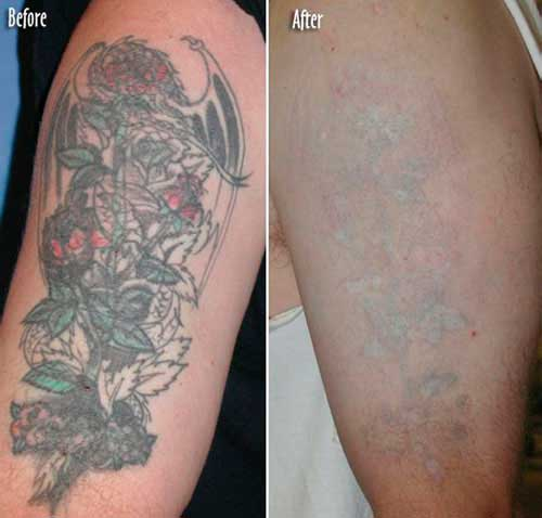 Tattoo Removal Ideas And Designs