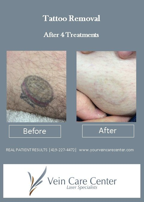 Tattoo Removal Before After Pictures Lima Auglaize Ideas And Designs