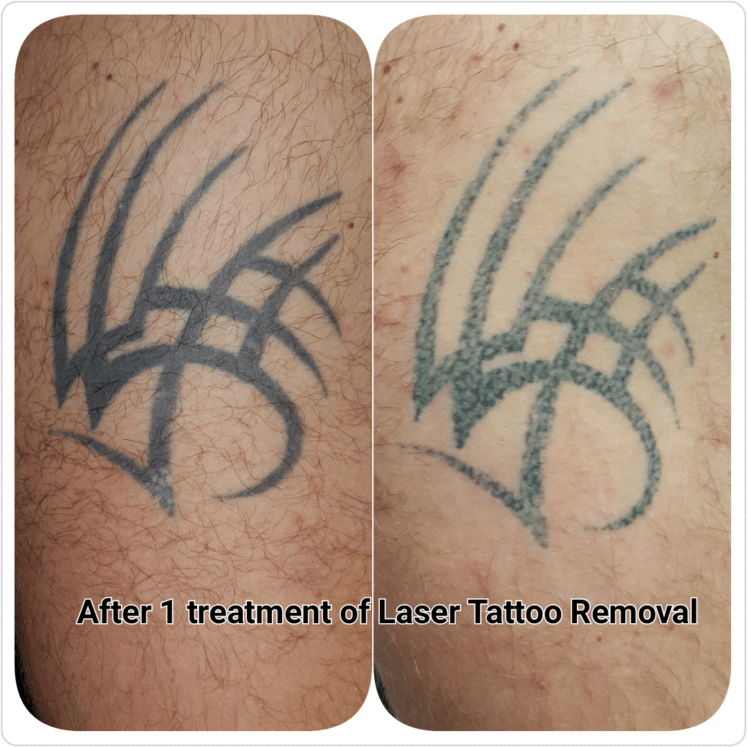 Gallery C H Laser Treatments Tattoo Removal Gloucester Ideas And Designs