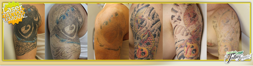 Laser Tattoo Removal Services In Houston Ideas And Designs