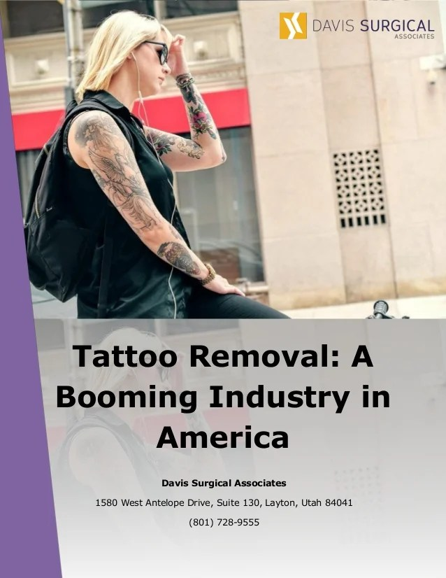 Tattoo Removal A Booming Industry In America Ideas And Designs