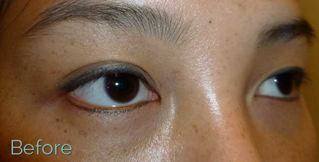 I M Thinking Of Removing My Permanent Eyeliner Which I Ve Ideas And Designs
