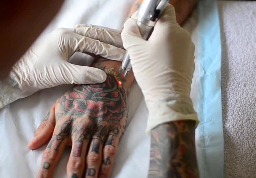 Laser Tattoo Removal Cost Side Effects Precautions Ideas And Designs