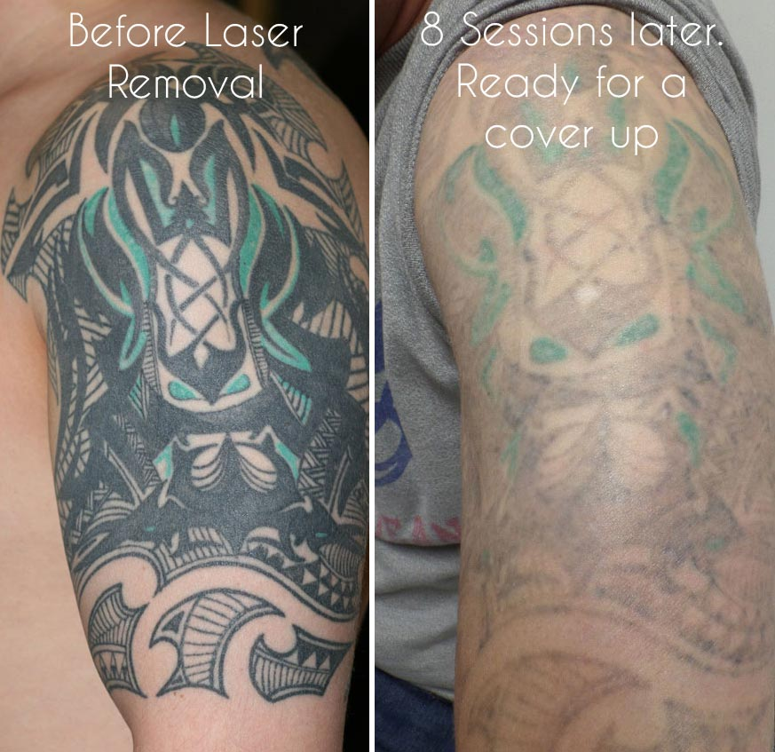 100 Removing A Tattoo How Much Laser Tattoo Removal Ideas And Designs