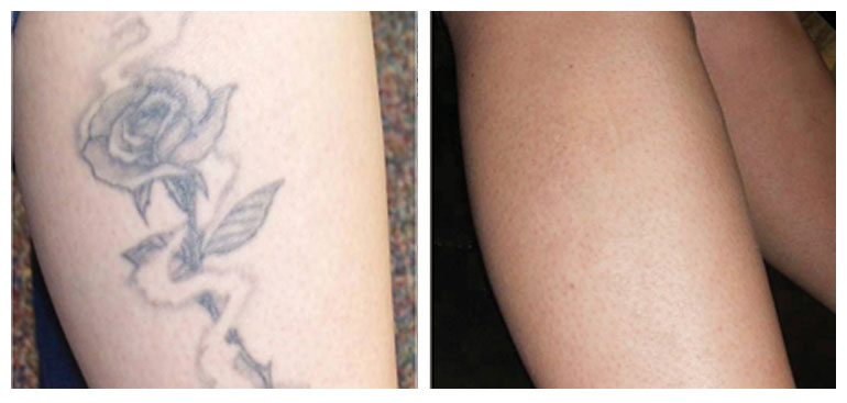 Before After North Houston Laser Tattoo Removal Ideas And Designs