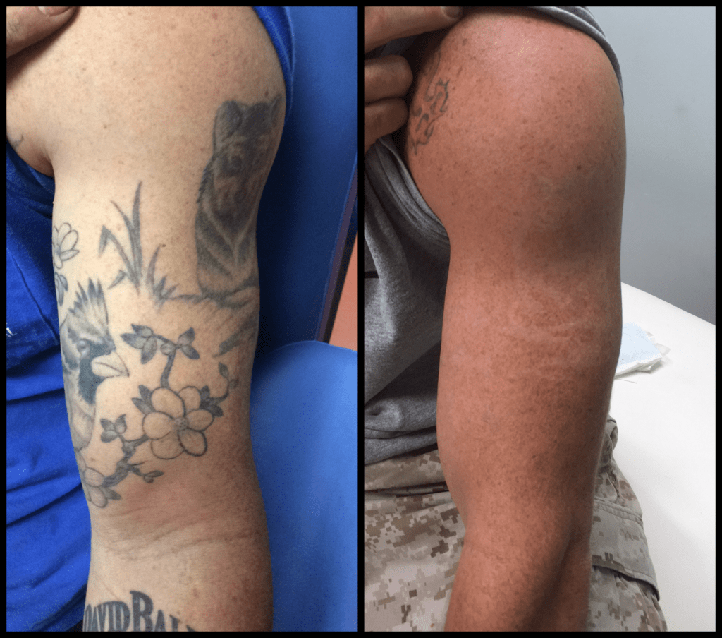 Tattoo Removal Facilities That Give Service Guarantee Ideas And Designs