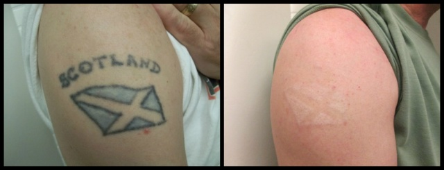 Laser Tattoo Removal Before After Photos Vanish Laser Ideas And Designs