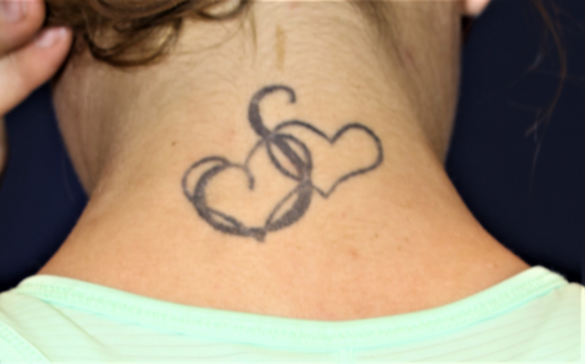 Safe Effective Laser Tattoo Removal Albuquerque Nm Ideas And Designs