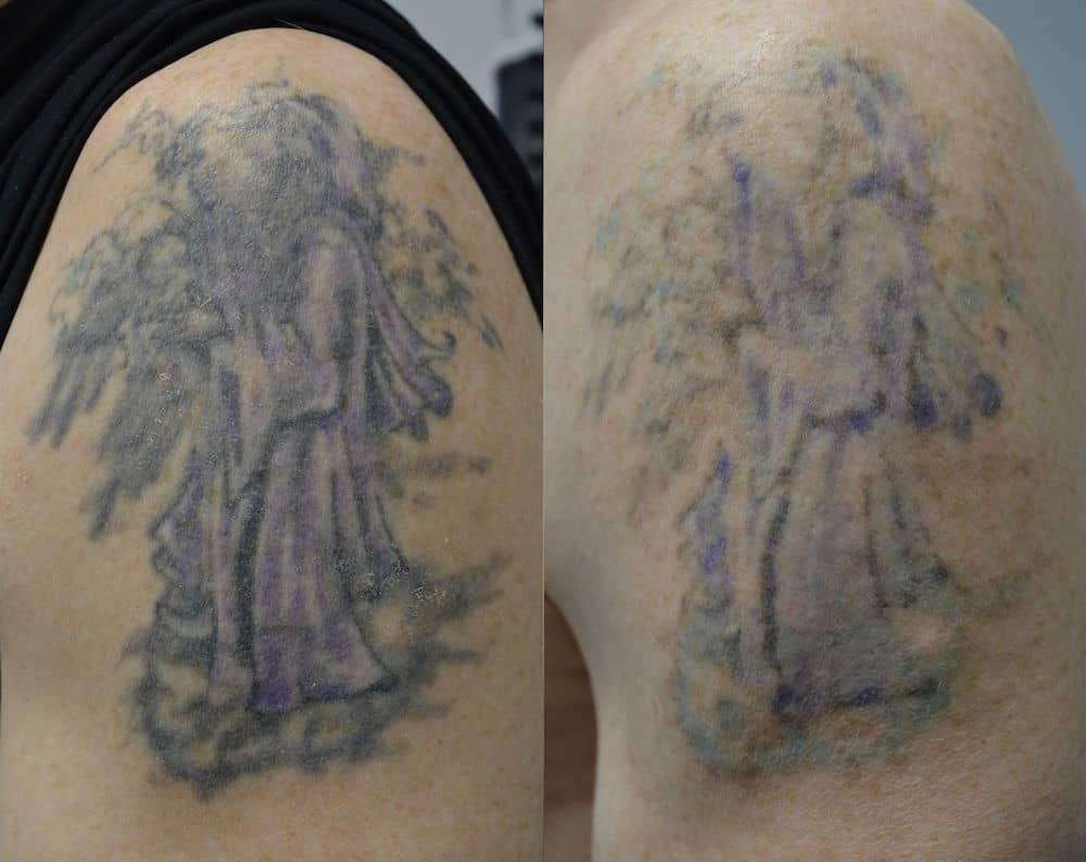 The Importance Of Proper Aftercare Laser Tattoo Removal Ideas And Designs