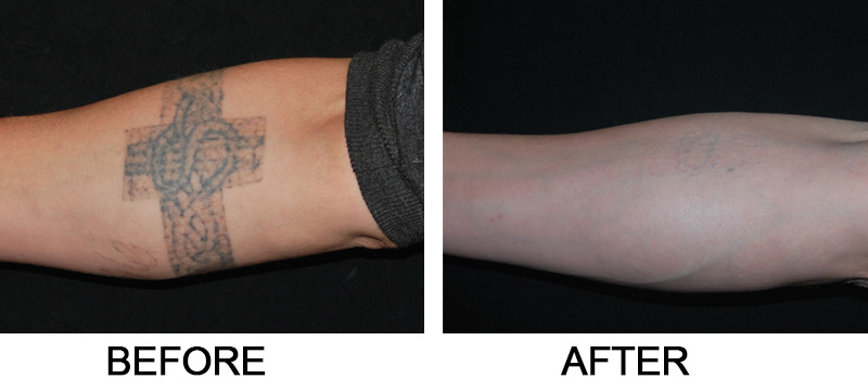 Laser Tattoo Removal Salmon Creek Plastic Surgery Ideas And Designs