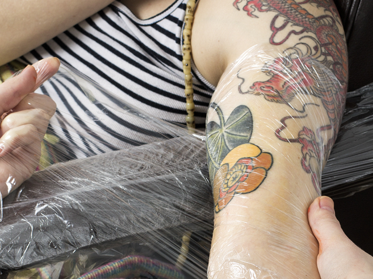 Tattoo Scarring Can I Treat Or Remove Unwanted Tattoo Scars Ideas And Designs