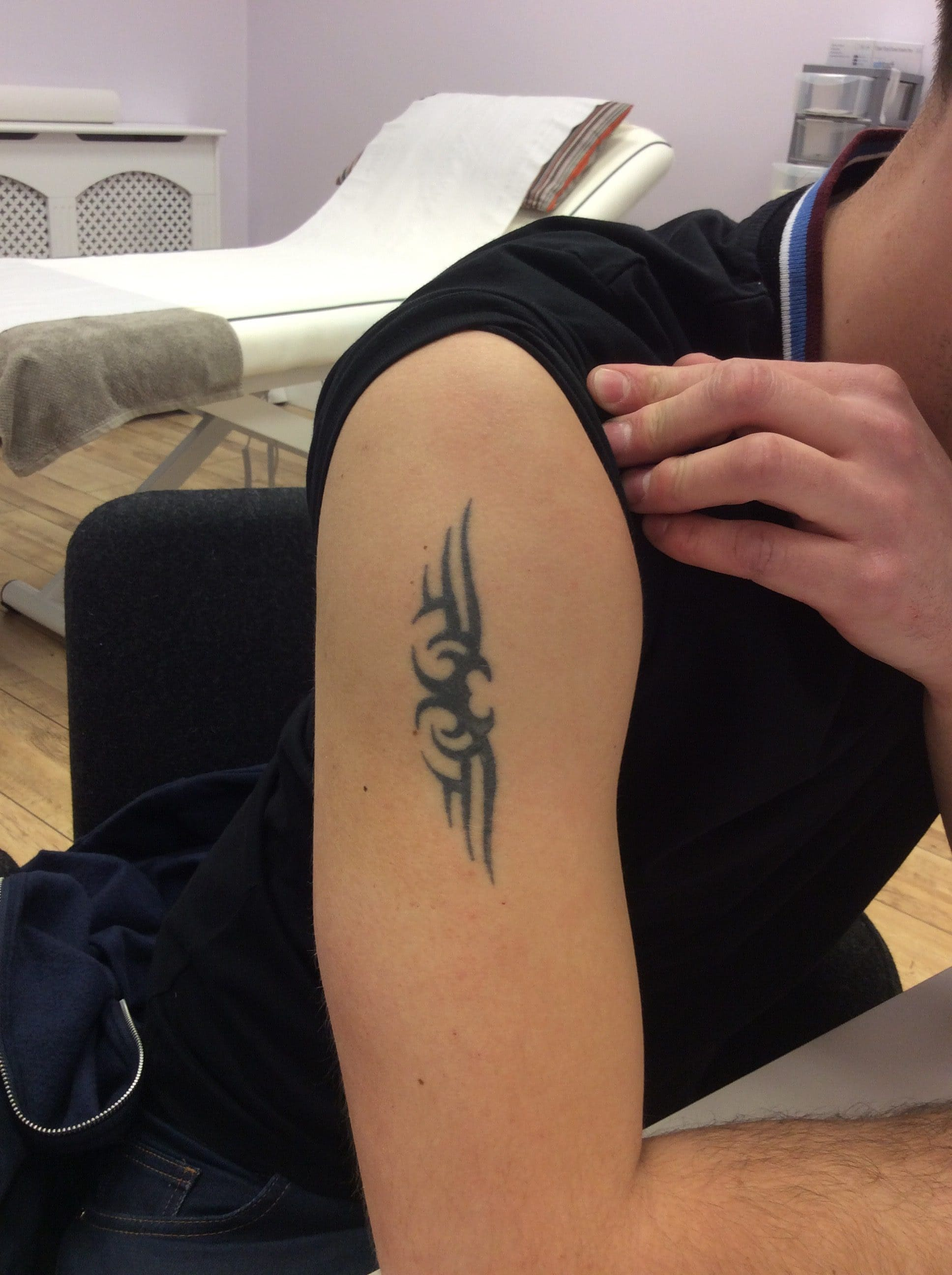 I Just Want A Cover Up Can Your Laser Tattoo Removal Work Ideas And Designs