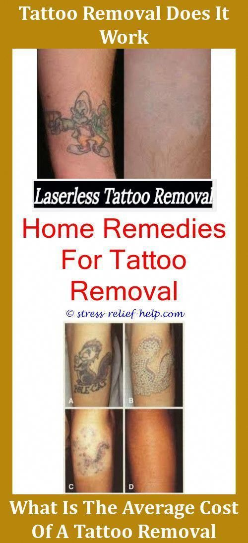 Tattoo Laser Treatment Can You Get Tattoos Removed Will Ideas And Designs