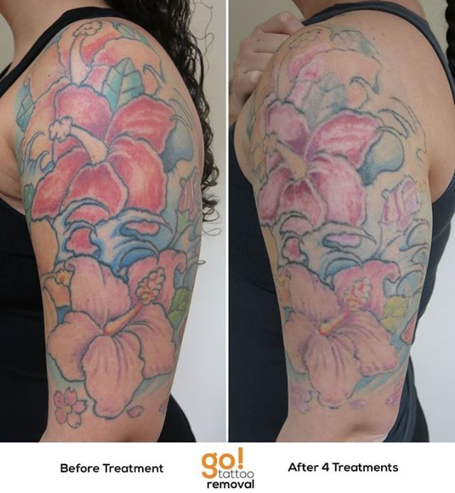 946 Best Tattoo Removal In Progress Images On Pinterest Ideas And Designs