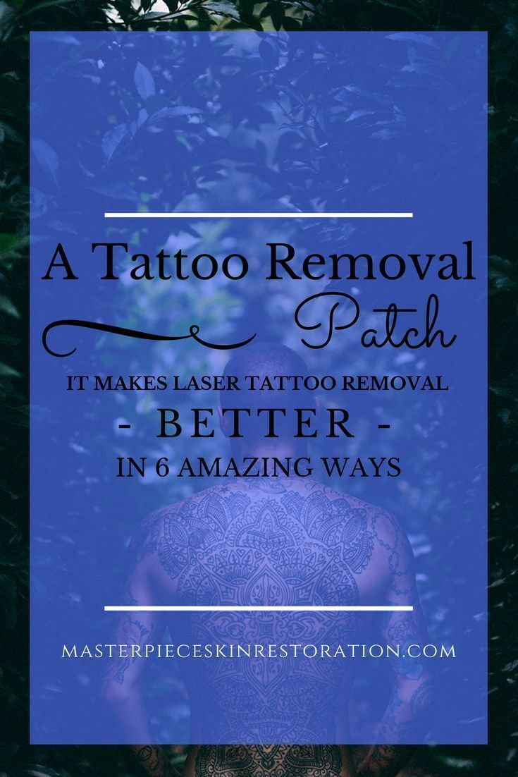 Best 25 Tattoo Removal Cost Ideas On Pinterest At Home Ideas And Designs