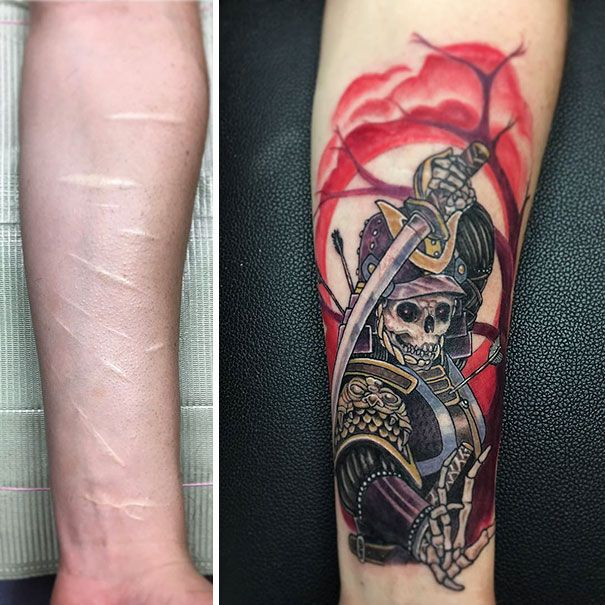 211 Amazing Tattoos That Turn Scars Into Works Of Art Ideas And Designs