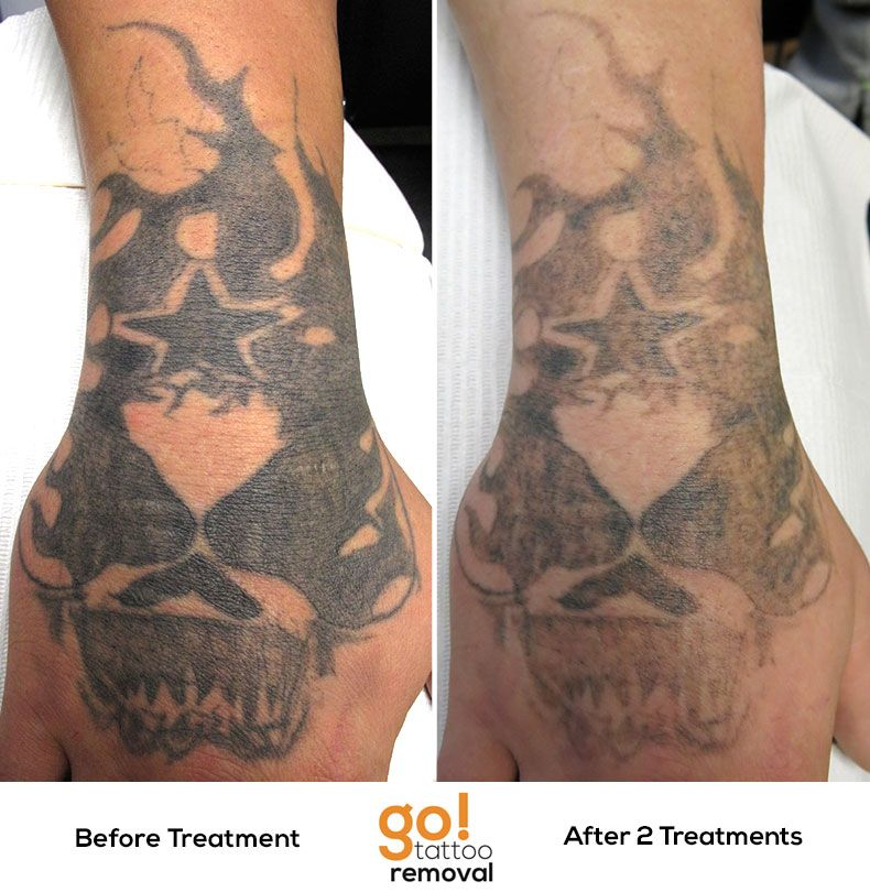 After 2 Laser Tattoo Removal Treatments We Re Making Ideas And Designs