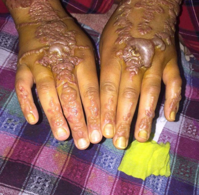 Woman S Hands Come Out In Blisters After Getting Black Ideas And Designs
