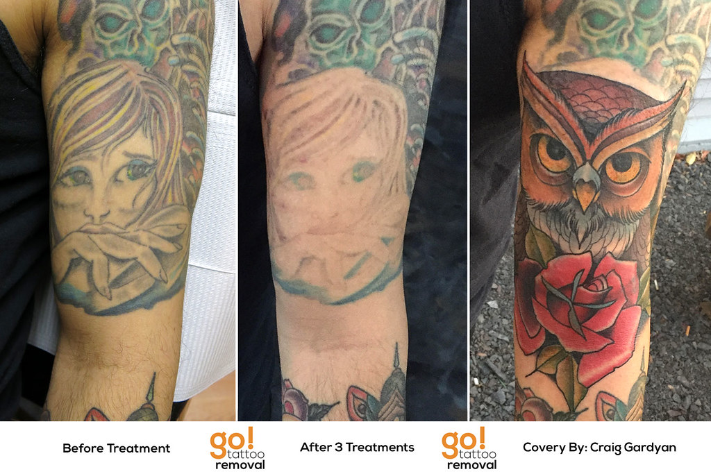 Tattoo Removal To Tattoo Cover Up Go Tattoo Removal Ideas And Designs