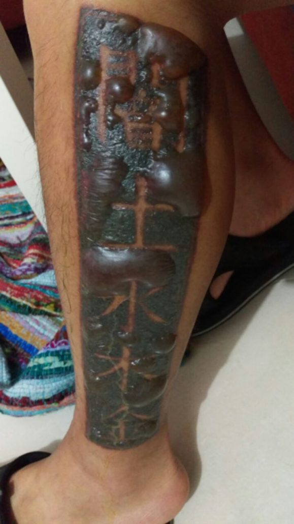 Tattoo Removal Gone Wrong How To Avoid A Tattoo Removal Ideas And Designs