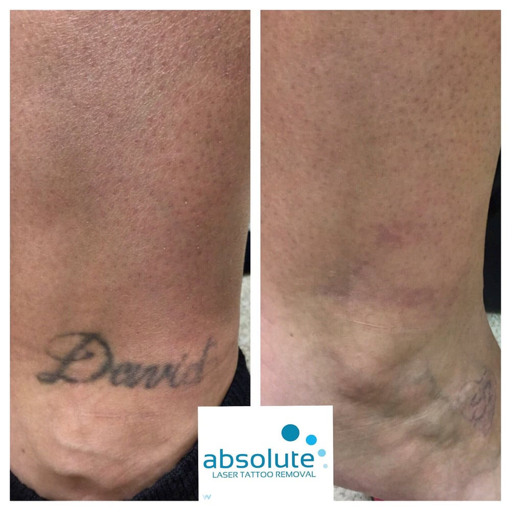 Absolute Laser Tattoo Removal 33 Photos 39 Reviews Ideas And Designs