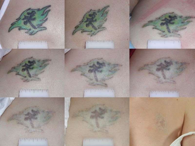 Best Natural Tattoo Removal At Home Ellecrafts Ideas And Designs