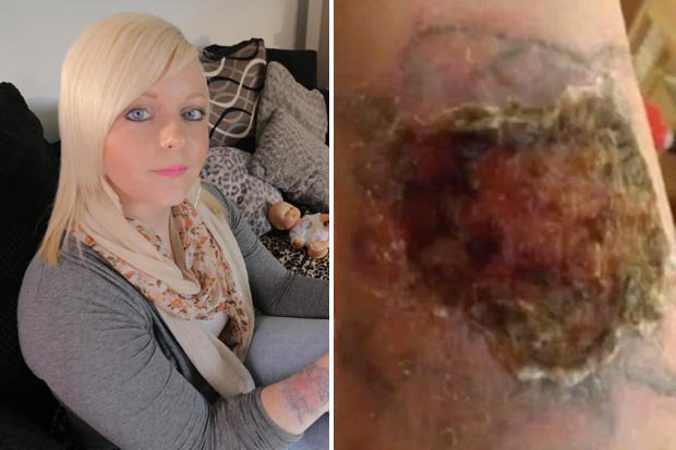 Tattoo Removal Kit Burns Hole In Woman S Arm Daily Star Ideas And Designs