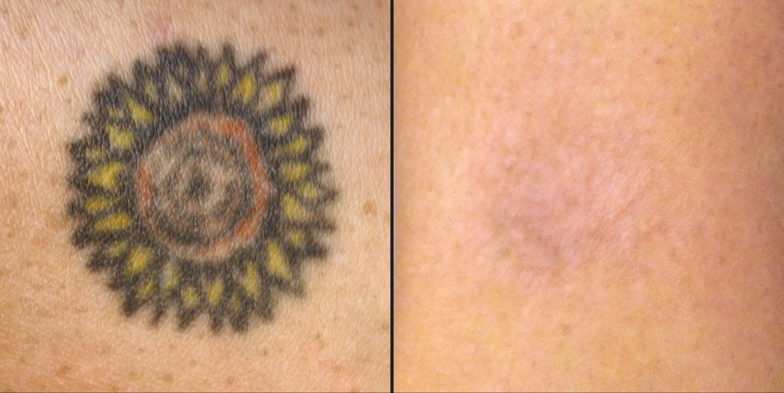 Natural Tattoo Removal How To Remove Tattoos Naturally Ideas And Designs