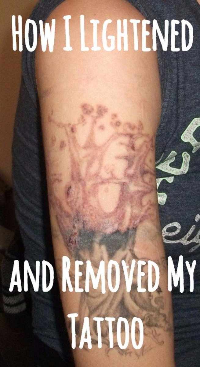 100 Can You Get A Tattoo Removed Laser Tattoo Ideas And Designs