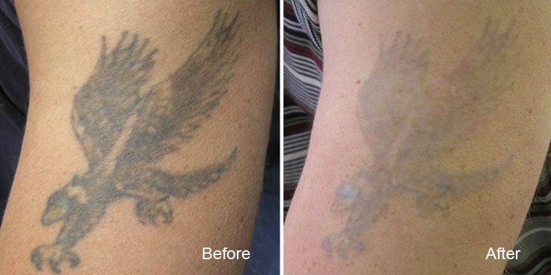 Results Gallery Beautiful Canadian Laser Skin Care Clinic Ideas And Designs