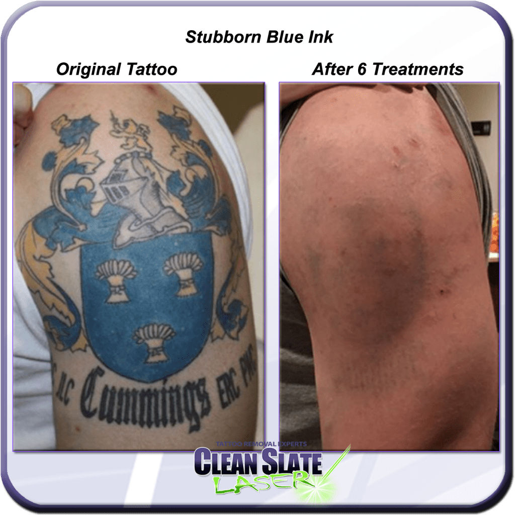 Stubborn Blue Ink – Clean Slate Laser Tattoo Removal Ideas And Designs
