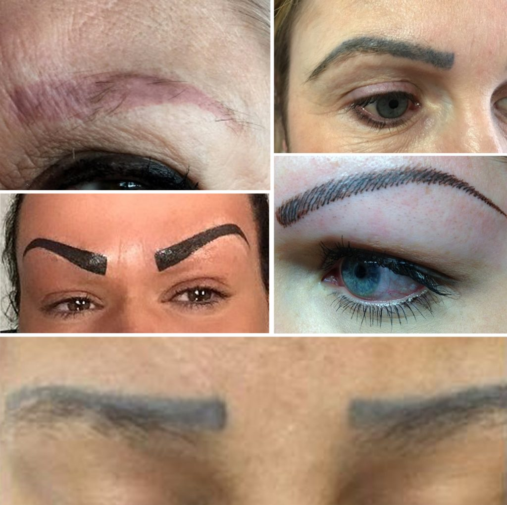 Microblading Eyebrow Tattoo Removal – Clean Slate Laser Ideas And Designs
