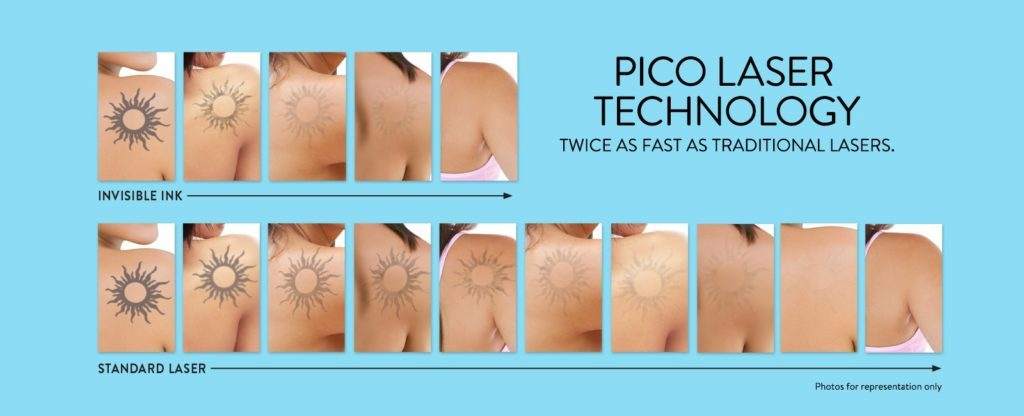 Tattoo Removal Washington Dc And Chevy Chase Md Ideas And Designs