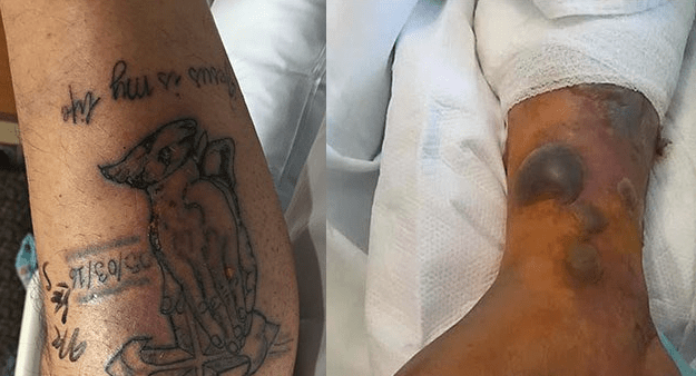 New Tattoo Warnings Man Dies From Flesh Eating Bacteria Ideas And Designs