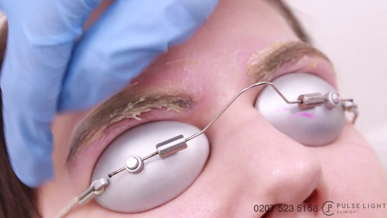 Laser Eyebrow Tattoo Removal Procedure Treatment With Ideas And Designs