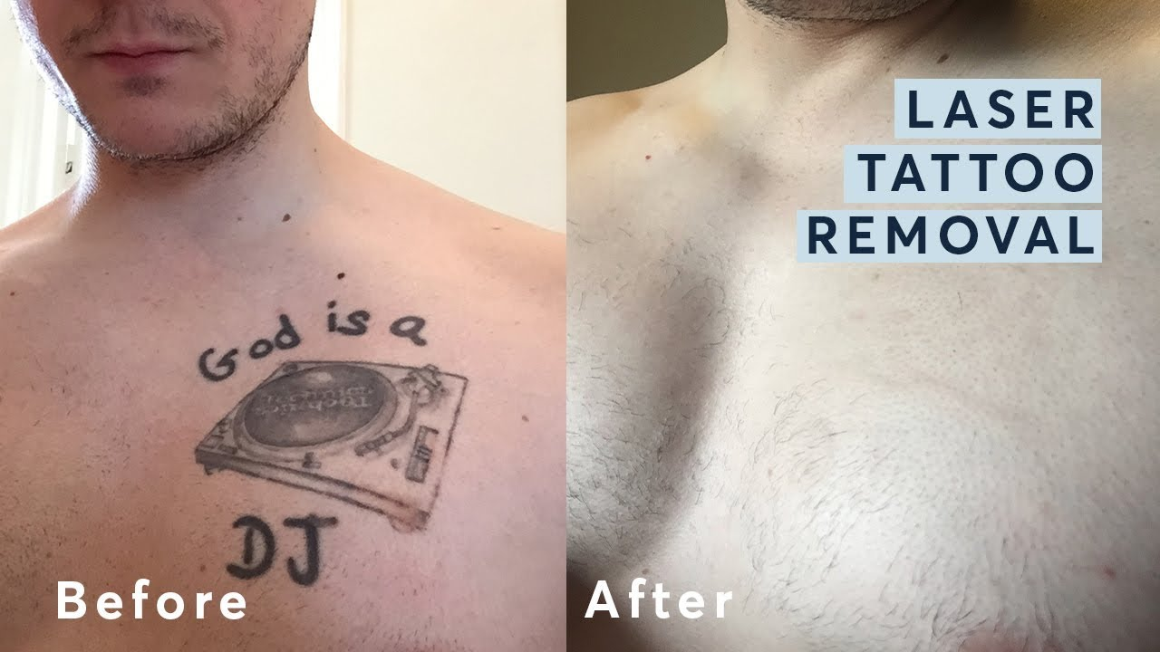Laser Tattoo Removal Before And After Through All The Ideas And Designs