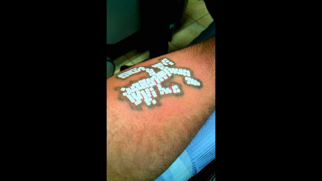 Laser Tattoo Removal Worst Pain Ever Youtube Ideas And Designs