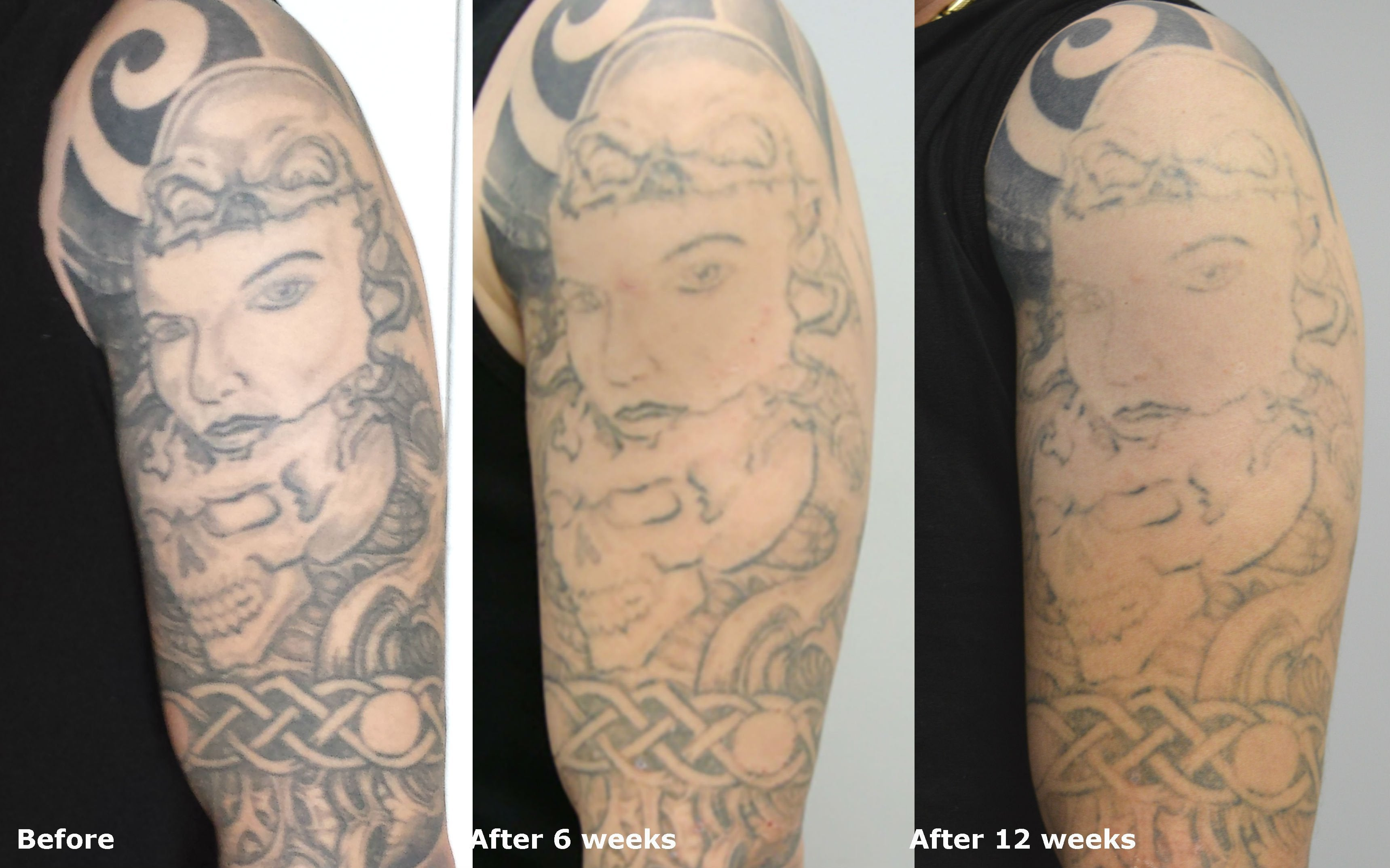 Before And After Tattoo Removal This Is Actually A Work Ideas And Designs