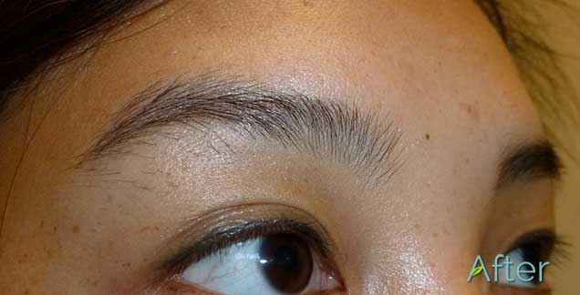 Can I Get My Eyeliner Tattoo Removed Ideas And Designs