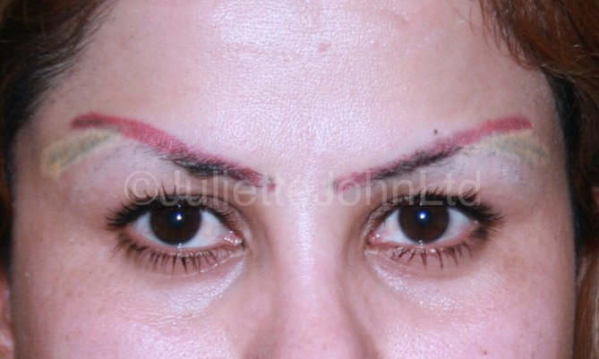 Special Feature Tattoo Removal Aesthetics Ideas And Designs