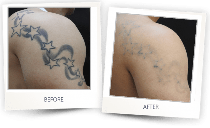 Laser Tattoo Removal Clearlift Laser Harmony Xl Pro Blog Ideas And Designs
