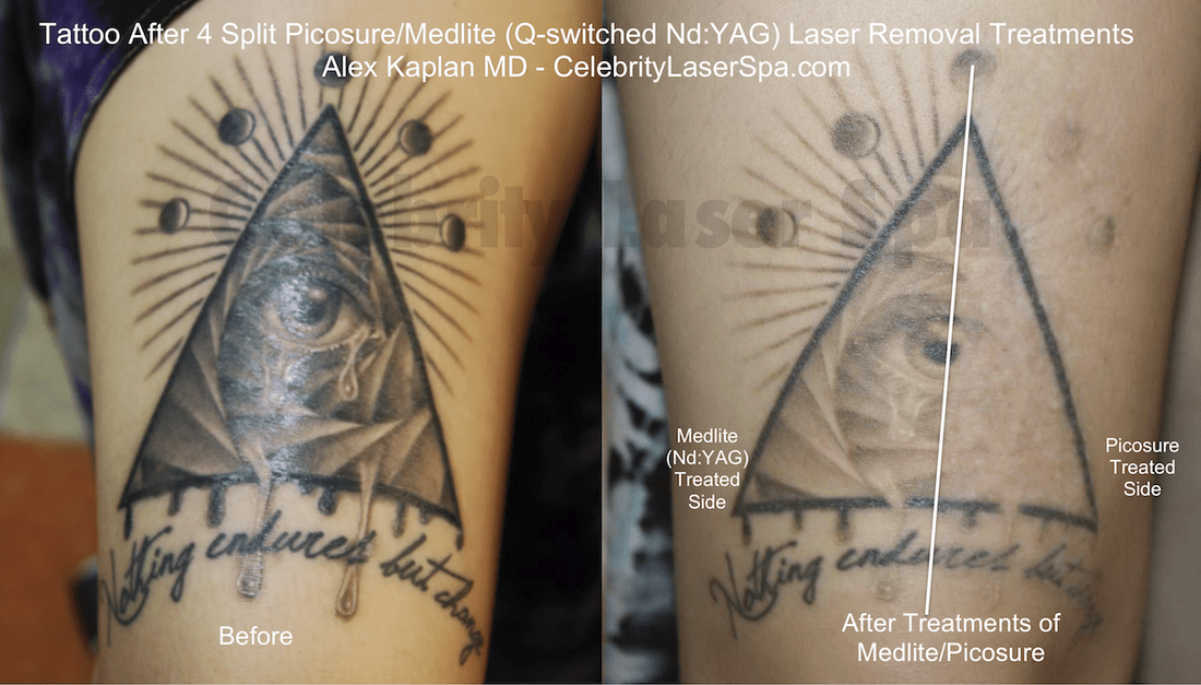 Types Of Tattoo Lasers Ideas And Designs
