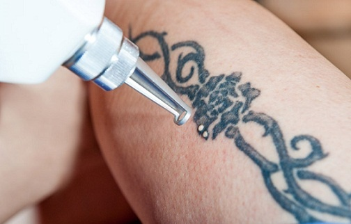 Can You Get Rid Of A Stick And Poke Tattoo At Home Quora Ideas And Designs