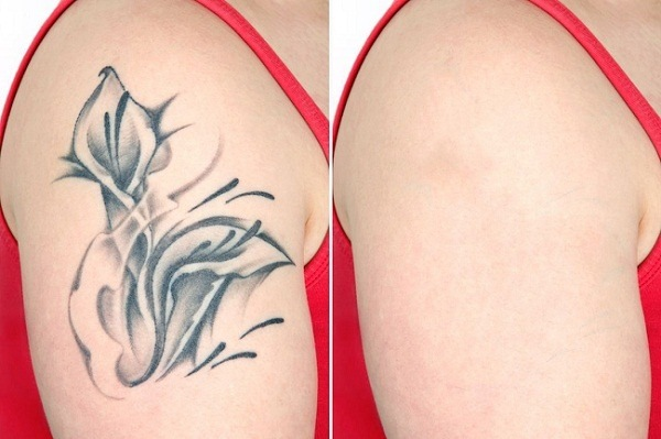 How To Remove Permanent Tattoo Without Laser Quora Ideas And Designs
