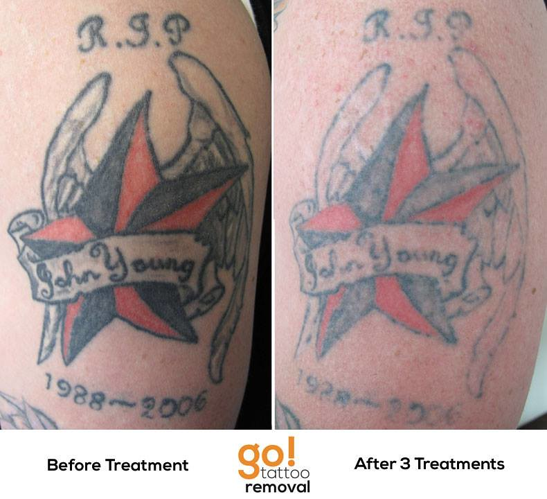 Laser Tattoo Removal Progress Photos Allentown Pa Ideas And Designs