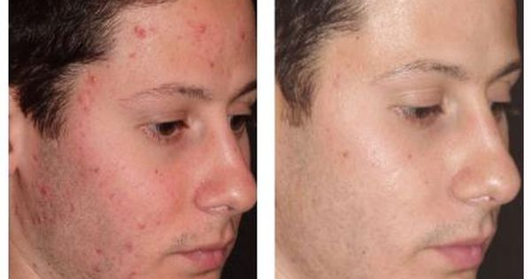 Finally I Got Rid Of Those Red Moles Laser Mole Removal Ideas And Designs