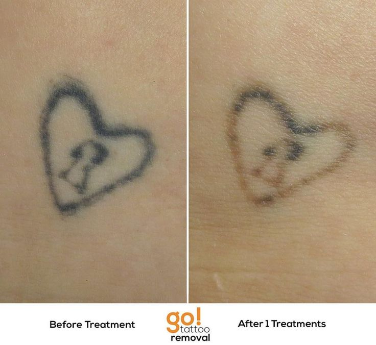 701 Best Images About Tattoo Removal In Progress On Ideas And Designs
