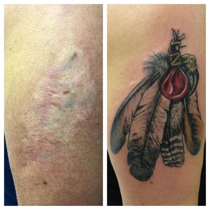 Surgical Scars Cover Up Tattoos Feathers Cool Tattoos Ideas And Designs